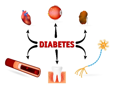 Graphic representation of diabetes complications (eye, heart, kidney etc)