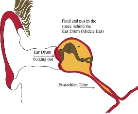 how do ear infections happen?