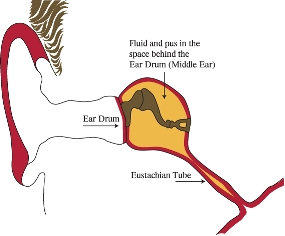 Diagram of the ear showing fluid in the middle ear