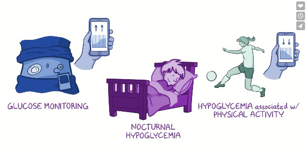 Graphic showing the association of hypoglycaemia and physical activity