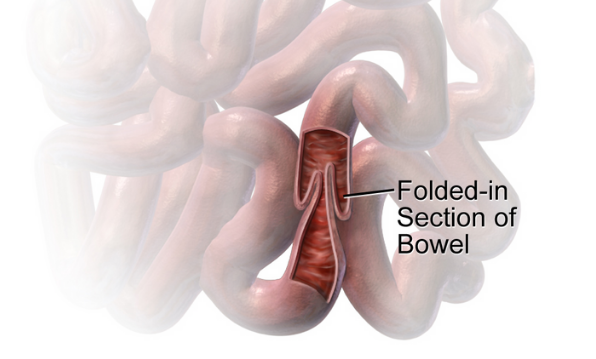 Image showing how intussusception affects the bowel