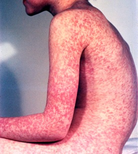 Photo of a boy with measles rash