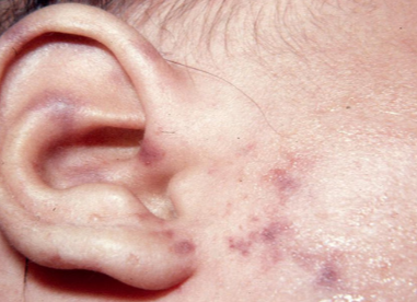An ear with meningoccal rash on an ear