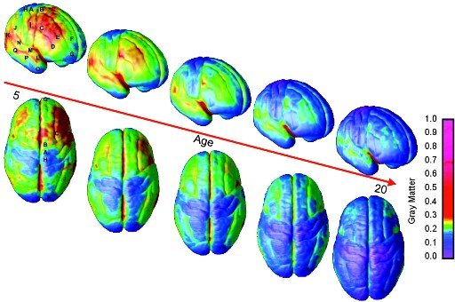 Image of brains showing increasing blue colour from 5 to 20 years of age