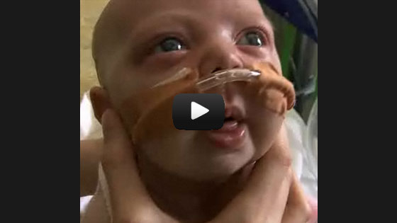 Whooping cough - a baby's struggle