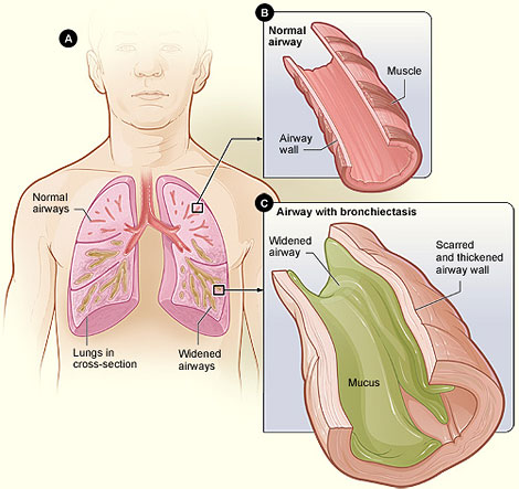 Diagram 1: Figure A shows a cross-section of the lungs with normal airways and with widened airways. Figure B shows a cross-section of a normal airway. Figure C shows a cross-section of an airway with bronchiectasis.