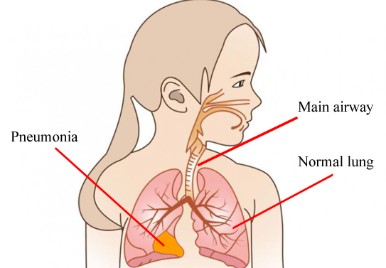 Pneumonia | KidsHealth NZ