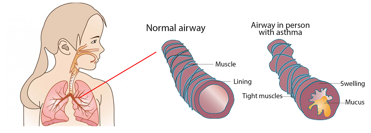 Graphic of lungs and airways showing normal airways and airways in someone with asthma