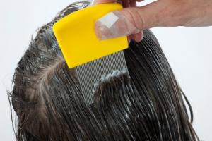 Treating a child for head lice using a fine-tooth head lice comb