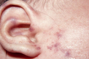 Meningicoccal rash on an ear